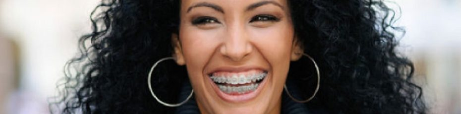 4 things to think about if youre considering getting braces as an adult