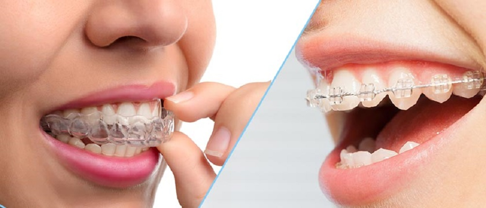 considering braces as an adult you might want to think about invisalign
