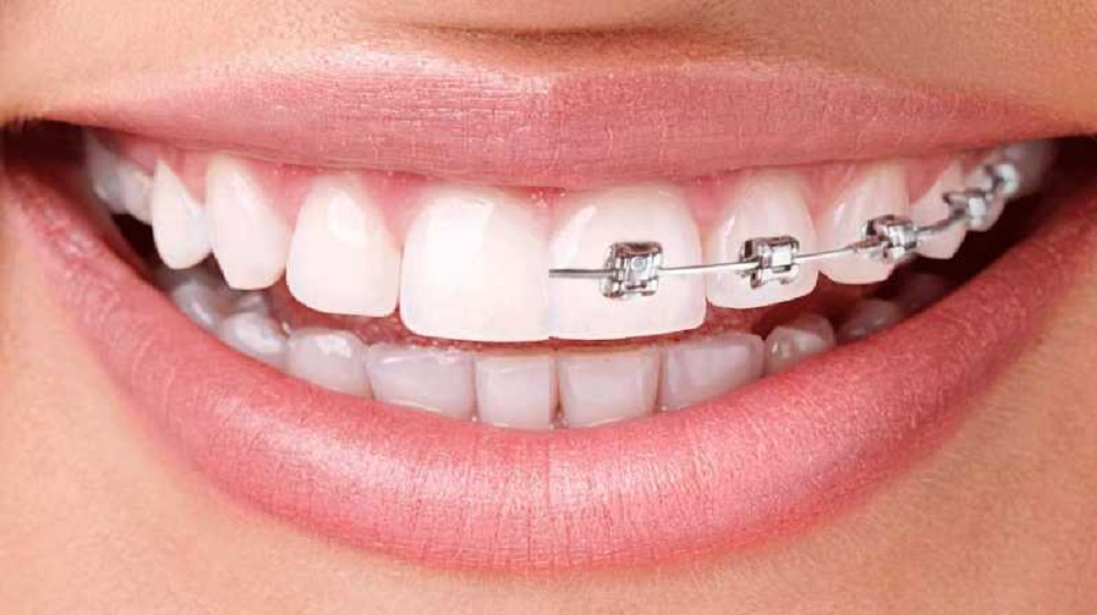 invisalign vs braces everything you should consider