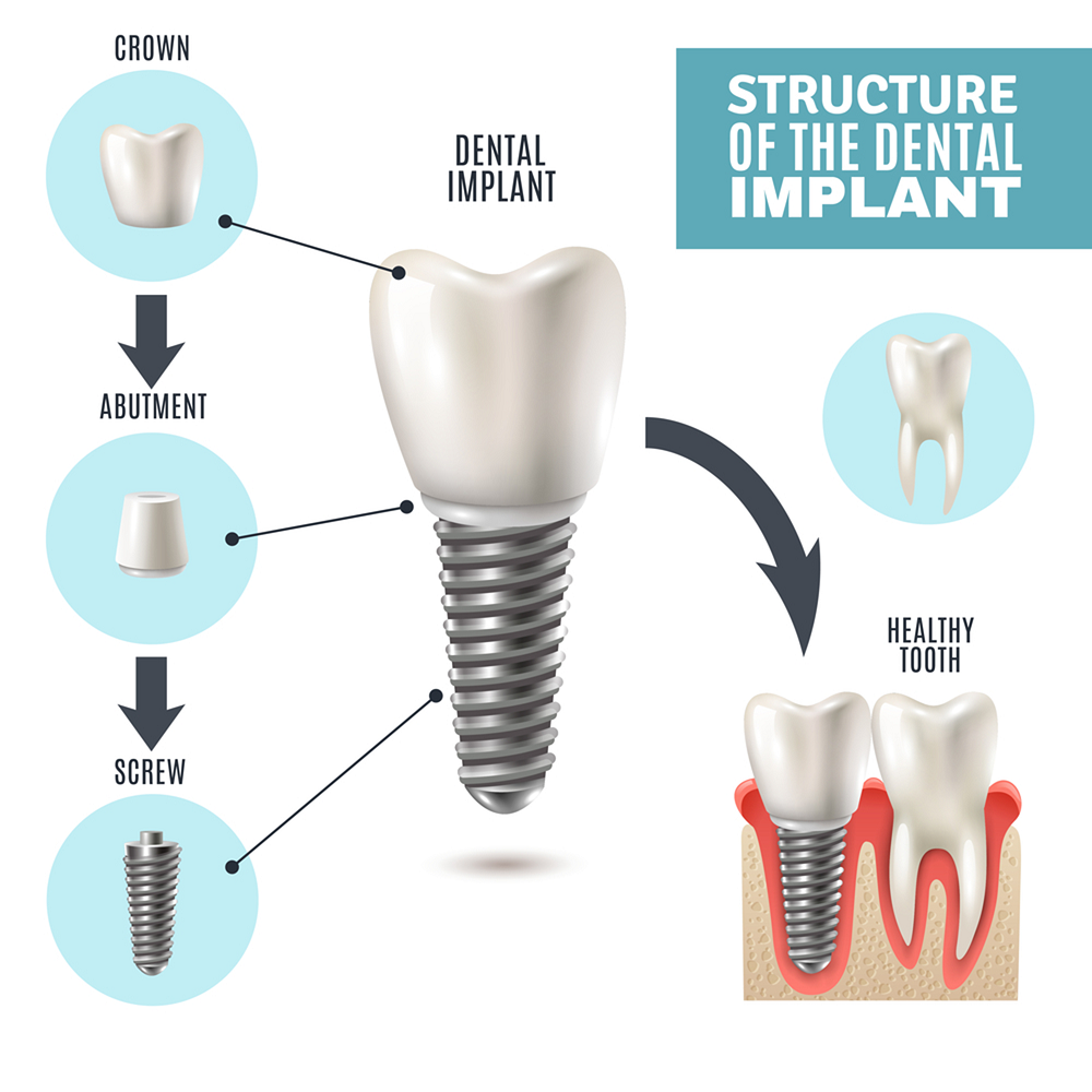 what to expect during the dental implant procedure